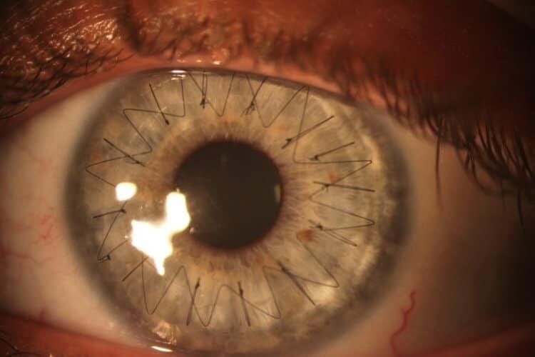 6 Buongiorno a occhi aperti - Chirurgia dei trapianti di cornea